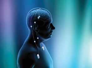 deep-brain-stimulation-st.-jude-medical
